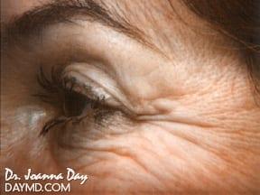 laser-skin-resurfacing01-before.beforeafter.daymd_